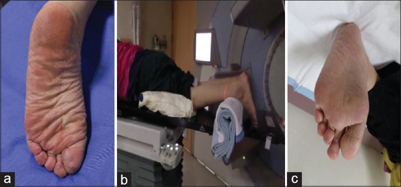 Figure 1: (a) Before radiotherapy treatment of a skin lesion located on the first and second toe and first web. (b) Treatment of the toe and web, with the patient's foot in the prone position and immobilized. (c) At 12 months following radiotherapy. The patient has maintained good extension and flexion of the toe with excellent strength