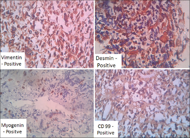 Figure 3: Immunohistochemistry with desmin, vimentin, and CD99 was positive and CD117, pancytokeratin, and placental alkaline phosphatase was negative; these confirm rhabdomyosarcoma