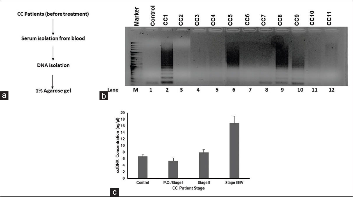 Figure 1: Circulating cell-free DNA isolation and agarose gel electrophoreses imaging of cervical cancer patient samples. (a) The workflow involved in sampling and isolation of circulating cell-free DNA from patient blood sample. (b) Agarose gel profile for circulating cell-free DNA belonging to the patients from different levels of cancer metastasis. (c) Circulating cell-free DNA concentration in different stages of cervical cancer
