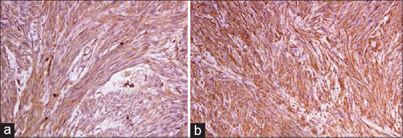 Figure 4: (a) Immunohistochemistry – positive for vimentin, (×400), (b) immunohistochemistry – positive for smooth muscle actin (×400)