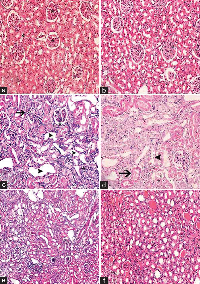 Figure 2: Kidney histology (H and E): (a) Control untreated rats: normal glomeruli and tubules × 200. (b) BME-treated rats: no pathological changes × 200. (c-d) Cisplatin-treated rats, (c) diffuse distortion of glomerular tufts with widening of Bowman's spaces (*) vacuolization, segmental dilation and atrophy of renal tubules (arrowheads), interstitial inflammatory infiltrate (arrow), ×200. (d) Proximal convoluted tubules with deeply eosinophilic cytoplasm and pyknotic nuclei (arrow), detachment of tubular epithelial cells, disruption of the luminal borders of renal tubular epithelial cells (arrowheads), intraluminal cellular debris and hyaline casts (*) ×200. (e-f) Cisplatin and BME co-treated rats, (e and f, ×100) no histological improvement of the glomerular and tubular pathology comparable to cisplatin group