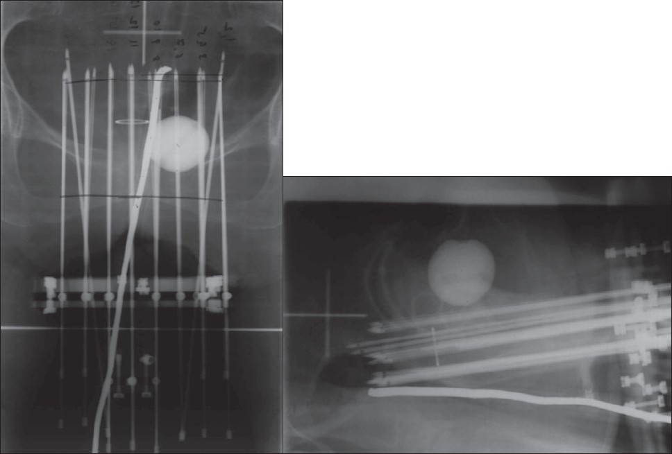 Figure 1: AP and lateral simulator films
