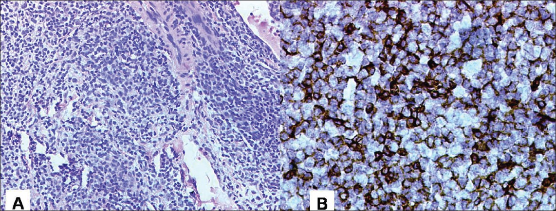 Figure 2: (A) H and E staining (200�): Section from the pancreas reveals a malignant tumor in sheets. Tumor cells are round to oval in morphology and have prominent nucleoli with scanty cytoplasm. (B) Immunohistochemistry: IHC reveals that the tumor cells express CD20 (B-cell marker)