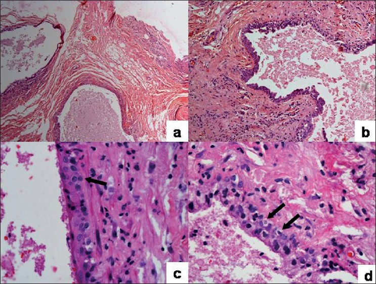 Accessory Axillary Breast Tissue Pictures http://www.cancerjournal.net/showbackIssue.asp?issn=0973-1482;year=2008;volume=4;issue=2
