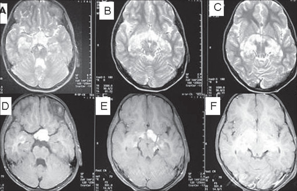 Figure 1: (A-C) Axial T2-weighted MR image showing hyperintensity on the sellar/suprasellar area with posterior and diffuse extensions along the entire chiasmatic hypothalamic pathway. (D-F) Contrast enhanced axial T1 weighted MRI image shows cystic and intense contrast enhancing components of chiasmatic mass with almost symmetrical bilateral involvement of optic apparatus