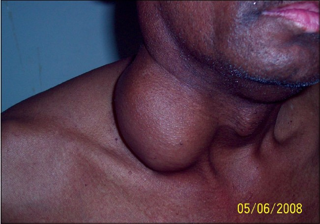 Figure 1: Clinical photograph of the patient showing cervical lymphadenopathy