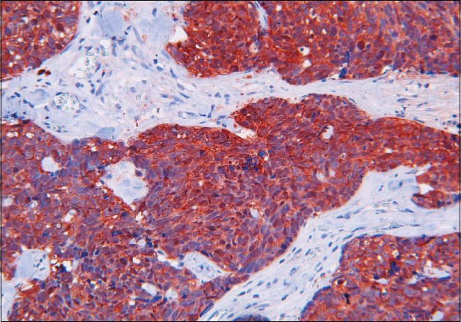 Figure 5: Immunostaining: Synaptophisin-antibody-positive bladder tumor cells