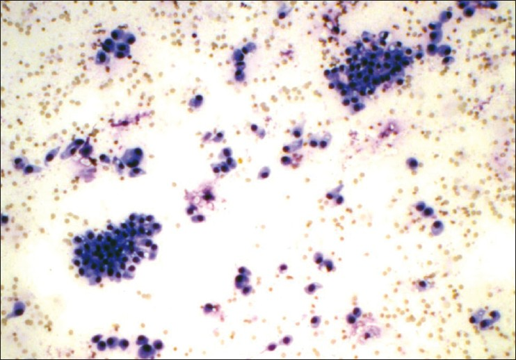 Figure 1: Smears revealing papillary fragments as well as isolated tumor cells. (Giemsa, 200×)