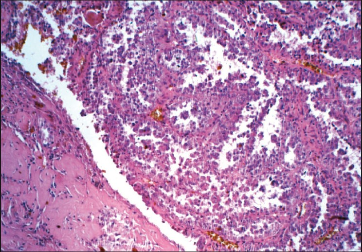 Figure 3: Photomicrograph showing characteristic endophytic papillary projections in papillary cystadenocarcinoma (H and E, 200×)