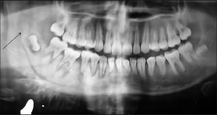 Osteosarcoma of the mandible - second cancer in a case of