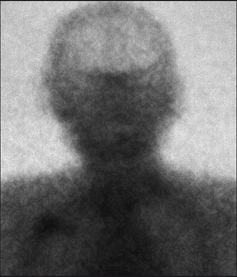 Figure 4: Octreoscan 10 weeks after the treatment showing the complete disappearance of the frontal and cervical uptake