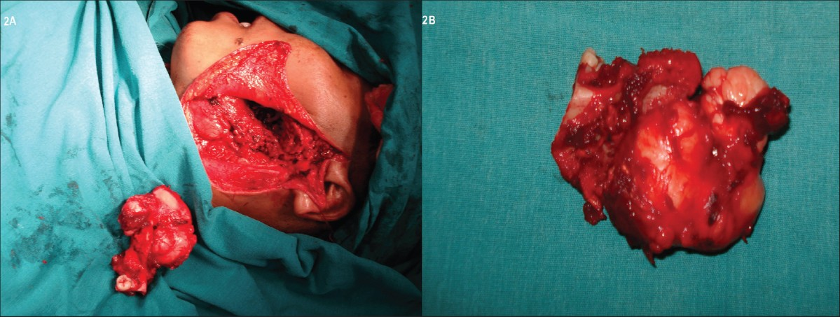 Figure 2: (A) Intra op picture with the defect alongside the resected tumor, (B) Specimen photograph showing the tumor