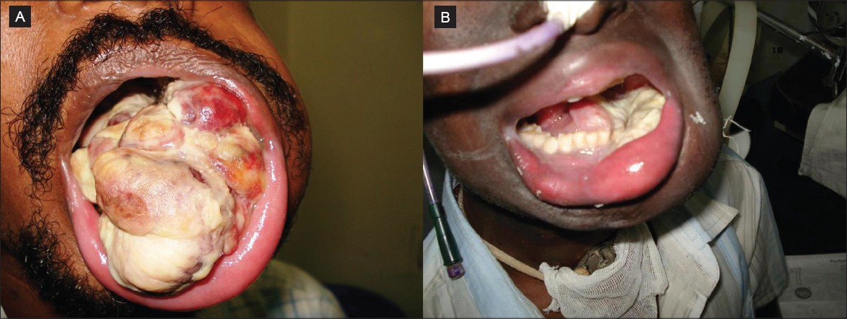 Figure 1: (A) Clinical picture of the patient at initial presentation, (B) Clinical picture of the patient postradiation therapy