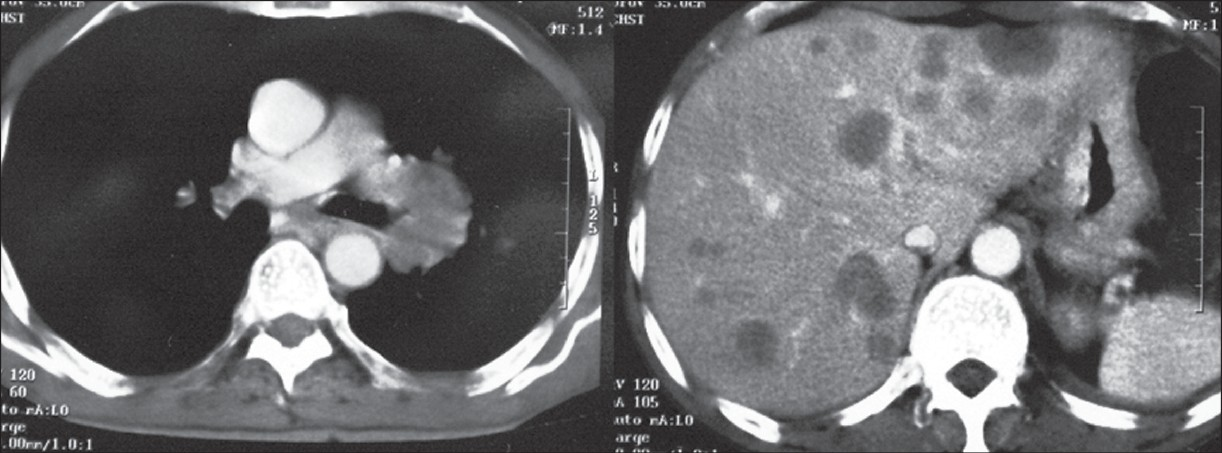 Figure 4: Contrast-enhanced CT scan of chest and upper abdomen showing left hilar mass and liver secondaries