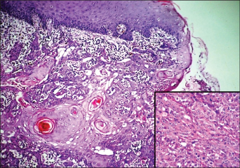 The gallery for --> Xeroderma Pigmentosum Histology