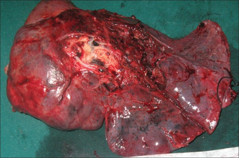 Figure 3: Right upper and middle bilobectomy specimen of the patient containing the tumor