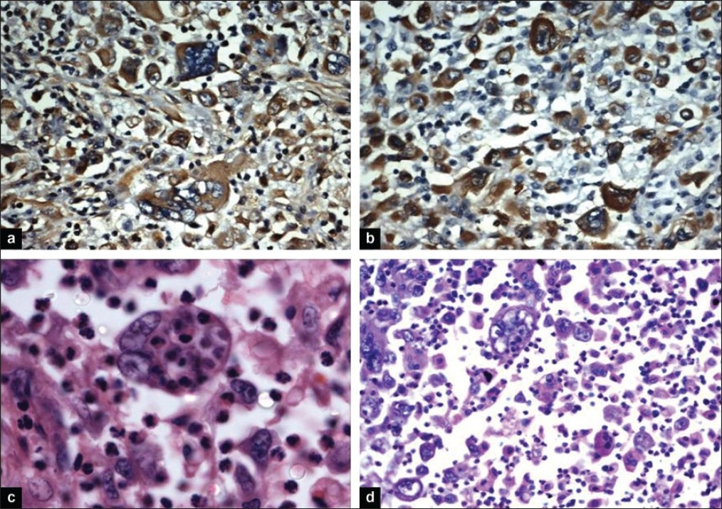 Figure 4: Histopathologic evaluation of the right upper and middle bilobectomy specimen of the patient showing the following results. (a) Immunohistochemical staining, ×100 - Showing vimentin positivity by tumor giant cells. (b) Immunohistochemical staining, ×100 - Showing keratin positivity by tumor giant cells. (c) H and E, ×100 - Showing the phenomenon of