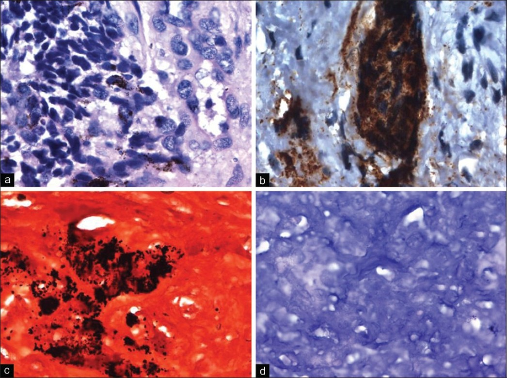 Figure 3: (a) H and E ×100-Showing large pigmented epithelioid and small neuroblastoma cells. (b) - Immunohistochemical staining, ×100-Human Melanoma Black 45 positivity by pigmented epithelioid cells. (c) - Immunohistochemical staining, ×100-Fontana stain demonstrating the melanin pigment (d) Immunohistochemical staining, ×100-Bleach staining showing removal of melanin pigment