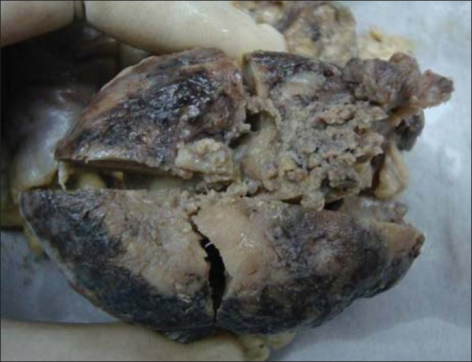 Figure 1: Gross photograph of the solitary polypoidal tumor with congestion, fungation and surface ulceration