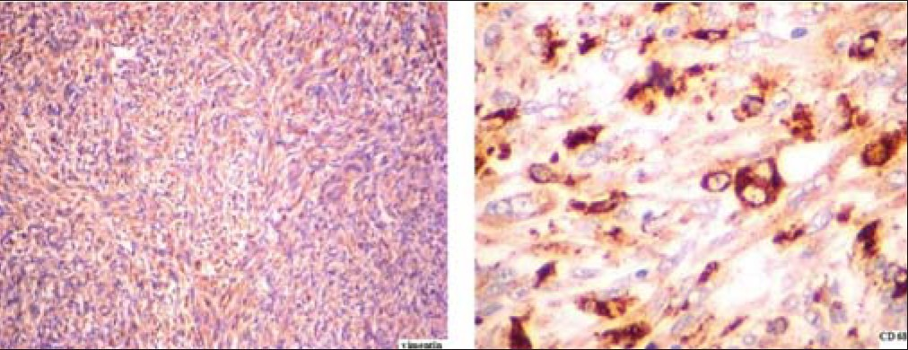 Figure 4: Tumor cells showing immunoreactivity for vimentin [200×] and CD 68 [400×] IHC