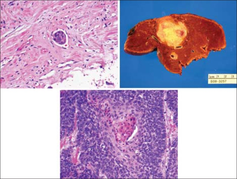 Figure 9: Gross and histological sections from patient's liver resection consistent with squamous cell carcinoma