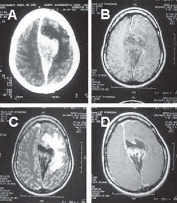 Figure 5: Radiological images of parasagittal meningioma: computed tomography scan axial section showing hyperdense lesion in the left frontal parasagittal region (A), Magnetic resonance imaging axial section T1 image showing iso to hypointense lesion (B), T2 image showing hypointesne lesion (C) and enhancement of lesion following contrast (D)