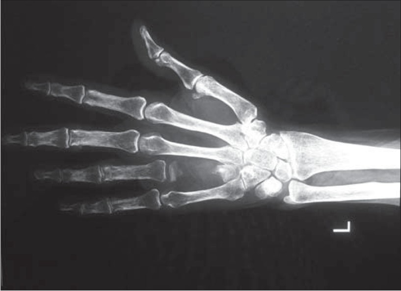 Xray Left Hand Figure 2 X-ray of the hand