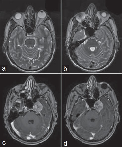 Figure 1: (Preoperative MRI): T2-weighted (a, b) and post-contrast T1 (c, d) images showing a well-defi ned tumor in the left para-sellar region extending into Meckel's cave