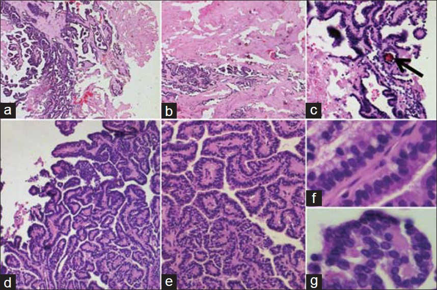 Figure 3: (Hematoxylin and Eosin): Photomicrographs showing a tumor with papillary architecture (a and b × 50 c × 200 d × 100 and e × 200). Occasional psammomatous calcifi cation (shown by the black arrow in the c) nuclear overlapping and nuclear clearing (f and g × 400) noted