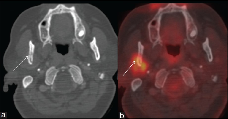 Isolated mandibular condylar metastases: An uncommon manifestation ...