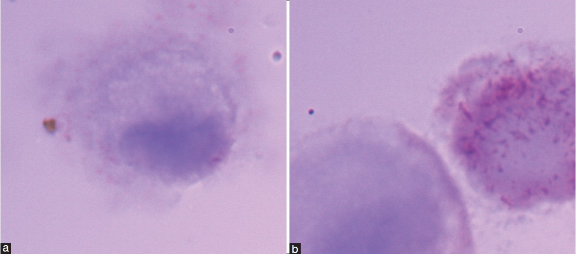 Figure 8: (a) The representative images of pCTCs of MBC patients, (b) The cells in these groups were larger than white blood cells and had distinct cytomorphology. They have a profile similar with CTCs, but there were no red, granular CKs in their cytoplasm. In the second image, we can find a CTC and a pCTC to co-exist in one scope