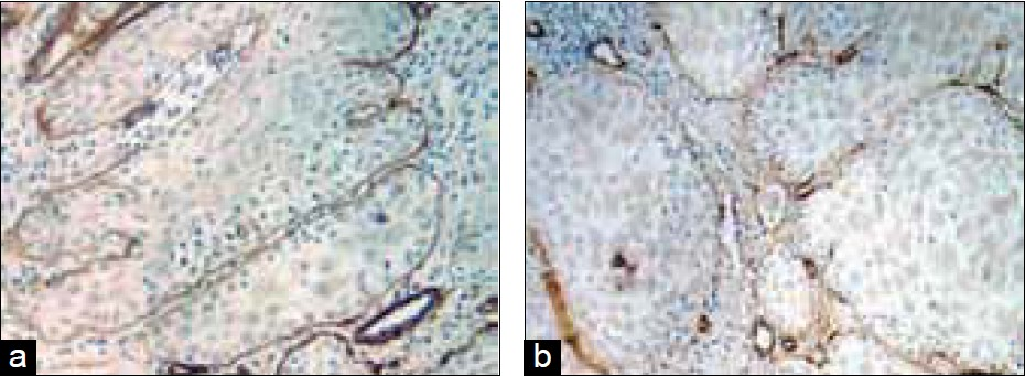 Figure 3: Oral squamous cell carcinoma. (a) Well localized tumor islands, (b) tumor cells invading the surrounding stroma. Immunoperoxidase stain for type IV collagen, hematoxylin counterstain, (a) ×25; (b) ×40. In early carcinomas, tumor islands were localized by continuous deposition of type IV collagen (a), while type IV collagen was disrupted as discontinuous deposition of antibody in later stages of carcinomas (b)