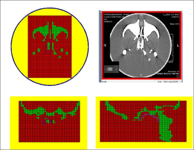Figure 4: A slice of computed tomography images and Monte Carlo N-particle transport code geometry for the same slice in sagittal, coronal, horizontal plane. Colors in this figure introduce material variation, Yellow, red and green respectively air, soft tissue and skeleton. Blue lines in lattice voxels represent sources position