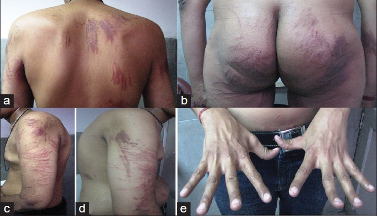 Bleomycin induced flagellate erythema: Revisiting a unique