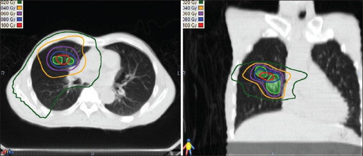Figure 1: Axial (a) and coronal (b) images illustrating a radiation treatment plan, which combines dose from 1st and 2nd stereotactic body radiation therapy treatments. Total prescribed dose was 60 Gy for each of the two courses of SBRT. Green shaded structures are the planned target volumes. The innermost (red) line is the 100 Gy isodose; blue, purple, orange and green lines represent 80, 60, 40 and 20 Gy, respectively