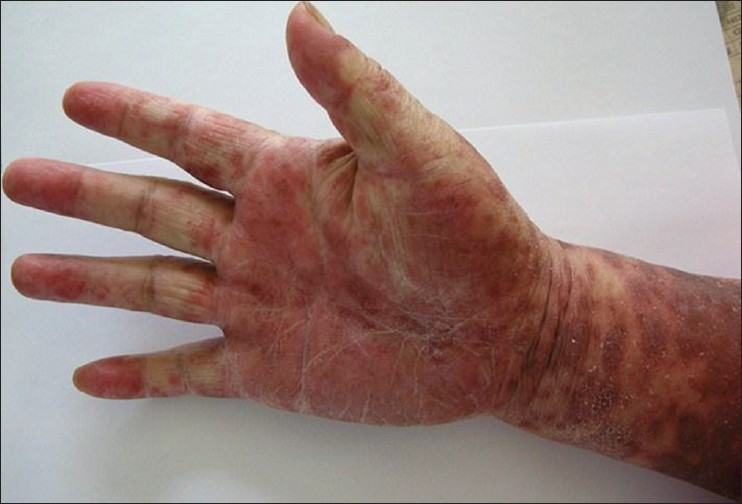 Figure 2: Diffuse painful erythema and edema on his upper extremity that affecting daily activities