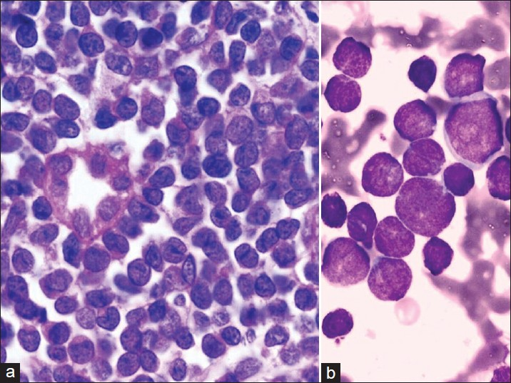 Figure 2: (a) Kidney biopsy H and E, ×100 shows infiltration by leukemic cells. One renal tubule is also seen in the picture, (b) Bone marrow smear Leishman ×100 shows lymphoblasts of varying sizes. Some of them show nucleoli