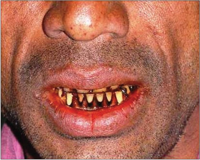 Figure 1: Stains due to betel nut consumption