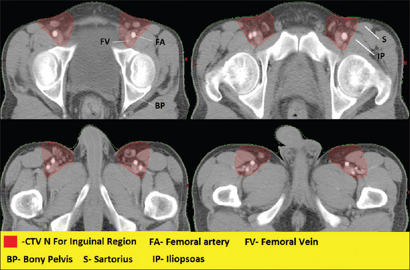 Study Of Distribution Of Inguinal Nodes Around The Femoral Vessels