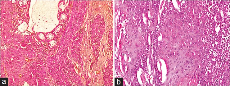 Treatment of choice for squamous cell carcinoma in anus