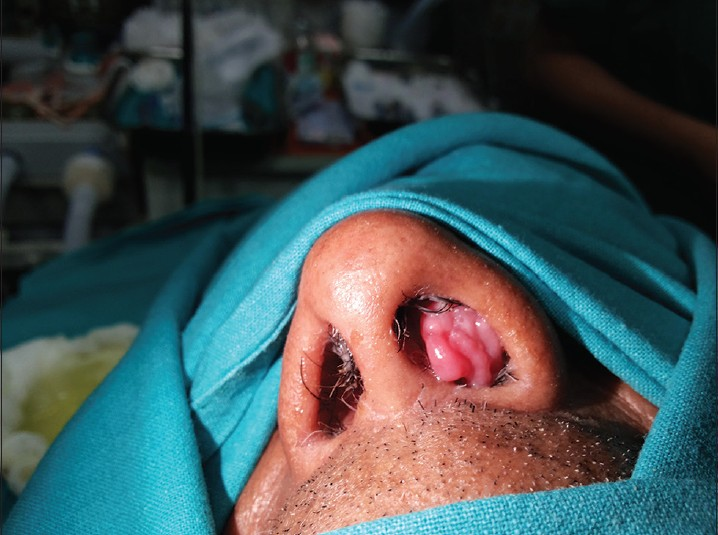 Inverted nasal papilloma