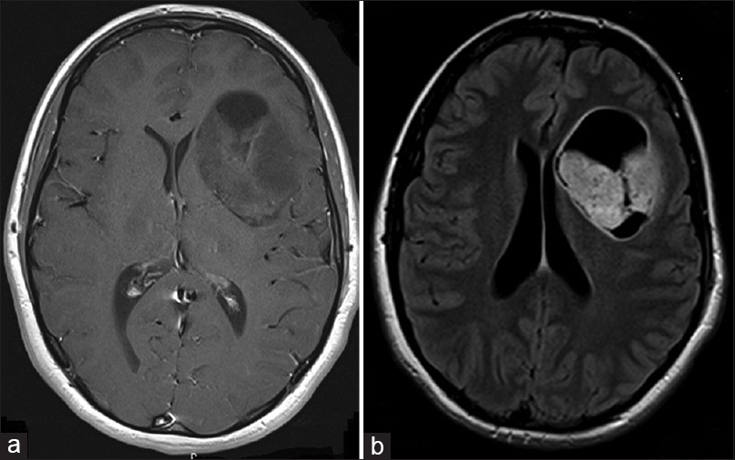 Figure 2 A Axial MRI With Gadolinium Enhancement Showing Left Frontal Lobe Nonenhancing Lesion At The Time Of Presentation B T1 Sequence