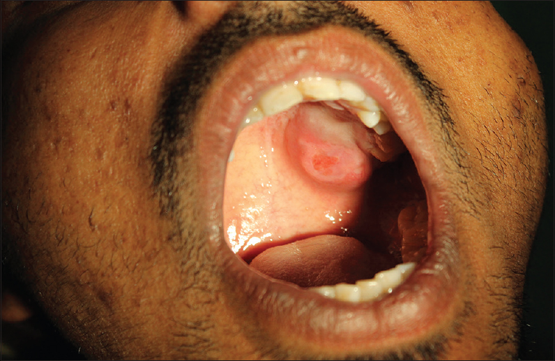 A rare occurrence of basal cell adenoma of palate: A case report