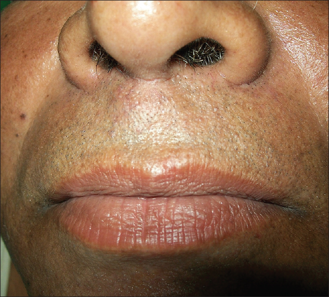 Pleomorphic adenoma involving minor salivary glands of upper lip: A