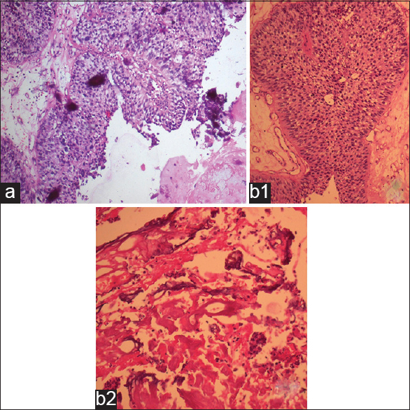 Figure 3: (a) Transurethral resection of bladder tumor (TURBT) specimen: Cluster of tumor cells in papillary fronds with calcification (hematoxylin and eosin (H and E), ×100). (b) Radical cystectomy specimen: (b1) Tumor cells in papillary frond, (b2) Calcification in subepithelial region (H and E, × 200)