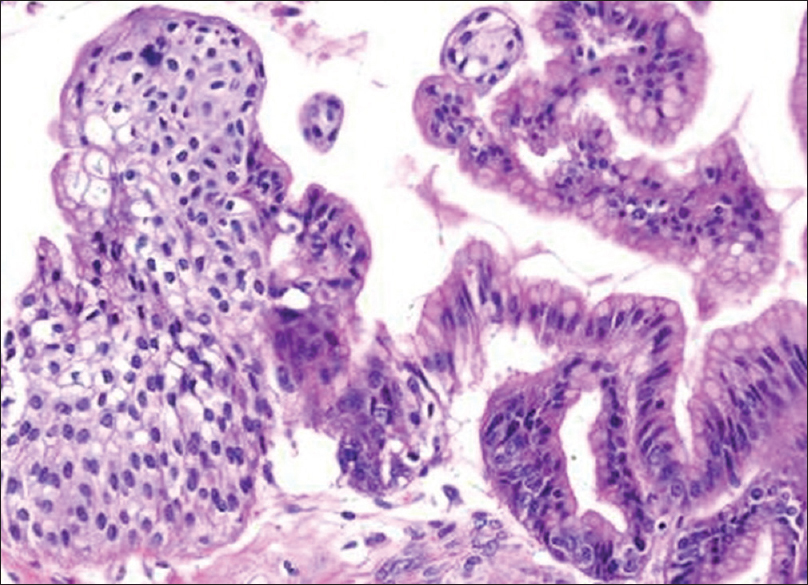 Figure 3: Light microscopy examination showing cystic areas lined by a single layer of mucinous epithelium and solid areas consist of fibrovascular tissue with well-defined nests of urothelial epithelium with nuclear grooving