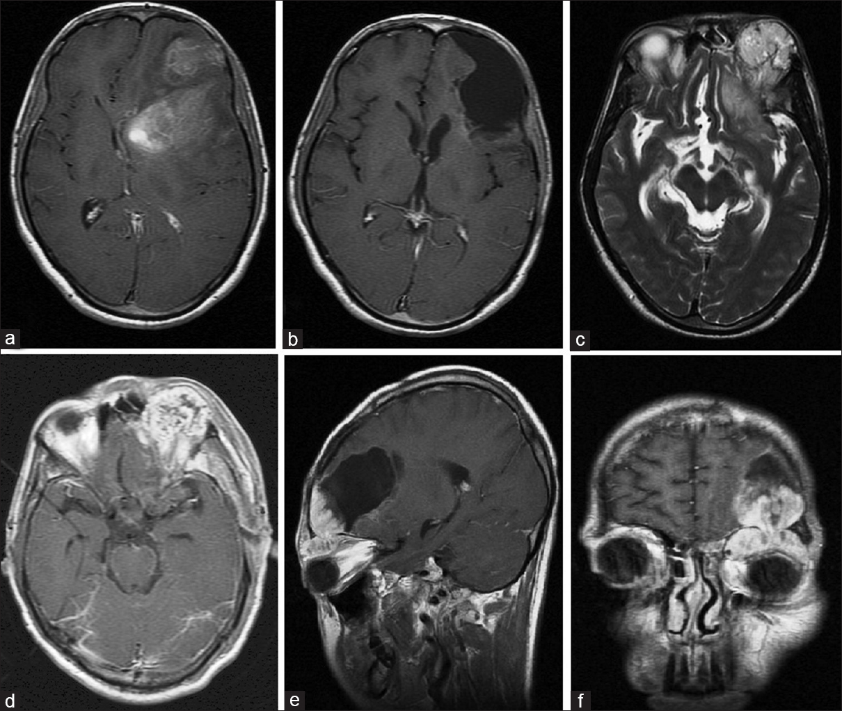 Figure 4: T1 magnetic resonance imaging (MRI) brain during the first admission showing a large, enhancing mass in the left frontal lobe (a). Follow-up MRI showing no recurrence (b). T2 MRI at the second admission showing a recurrent lesion in relation to the left orbit (c). Axial section showing heterogeneous enhancement of the lesion (d). Cranial-caudal extent of the lesion (e). Extension of the lesion into the orbit (f)