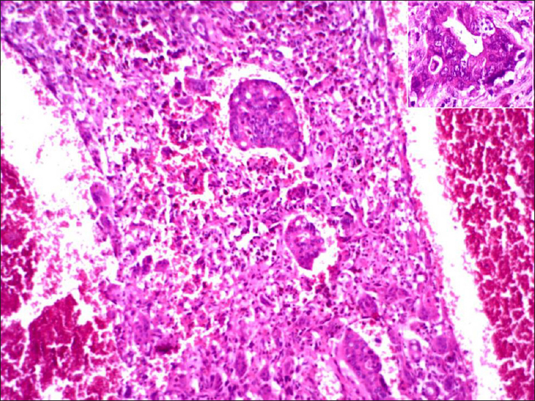 Figure 3: Histology of the tumor shows cyst wall revealing sarcomatoid tumor cells with osteoclast-like giant cells. Inset shows focus of conventional adenocarcinoma (H and E, ×400)