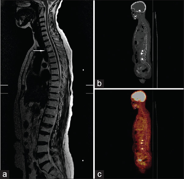 Figure 2: (a) Vertebral MR showing metastasis in T3 vertebrae and a pathologic fracture with altitude loss in L2 and L5 vertebraes. (b-c) Posttreatment PET-CT; showing just signs of vertebroplasty. MR = Magnetic resonance, PET-CT = positron emission tomography-computed tomography