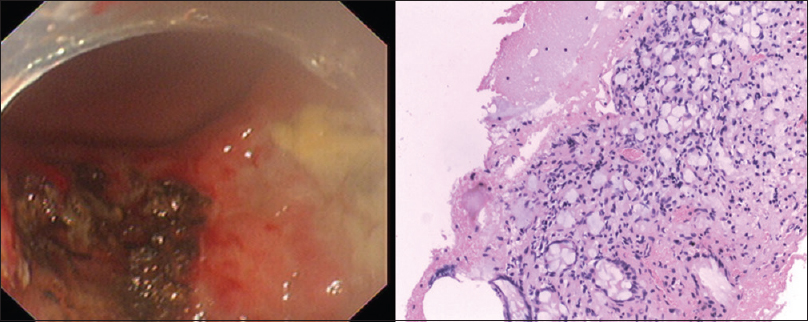 Figure 9:  The second endoscopic submucosal dissection procedure involved stripping away of a section of the gastric mucosa of approximately 5 cm in diameter. Pathological diagnosis: (1) Chronic mucosal inflammation, and abnormal cell nests in the focal area. (2–11) No cancer tissue